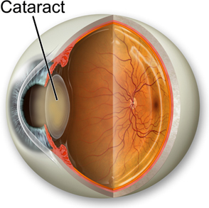 Cataract Diagram