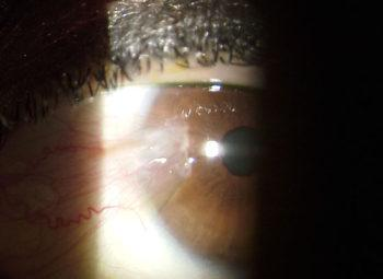 Pterygium in Eye