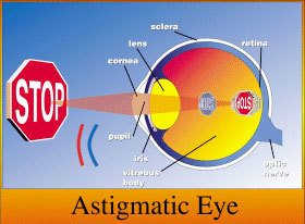 Eye Anotomy Astigmatic Eye