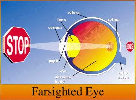 Eye Anotomy Farsighted Eye