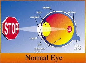 Eye Anotomy- Normal Eye