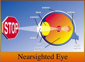 Eye anotomy- Near sighted Eye
