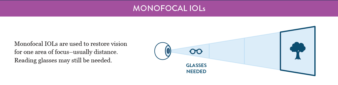 monofocal-iol
