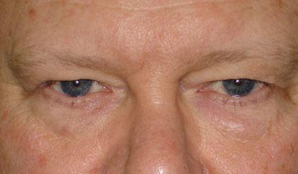 eyes before eyelid surgery