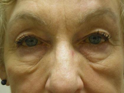 Baggy skin under eyes