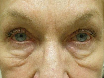 Skin under eyelids before surgery