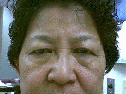 Eyes with overhanging eyelids