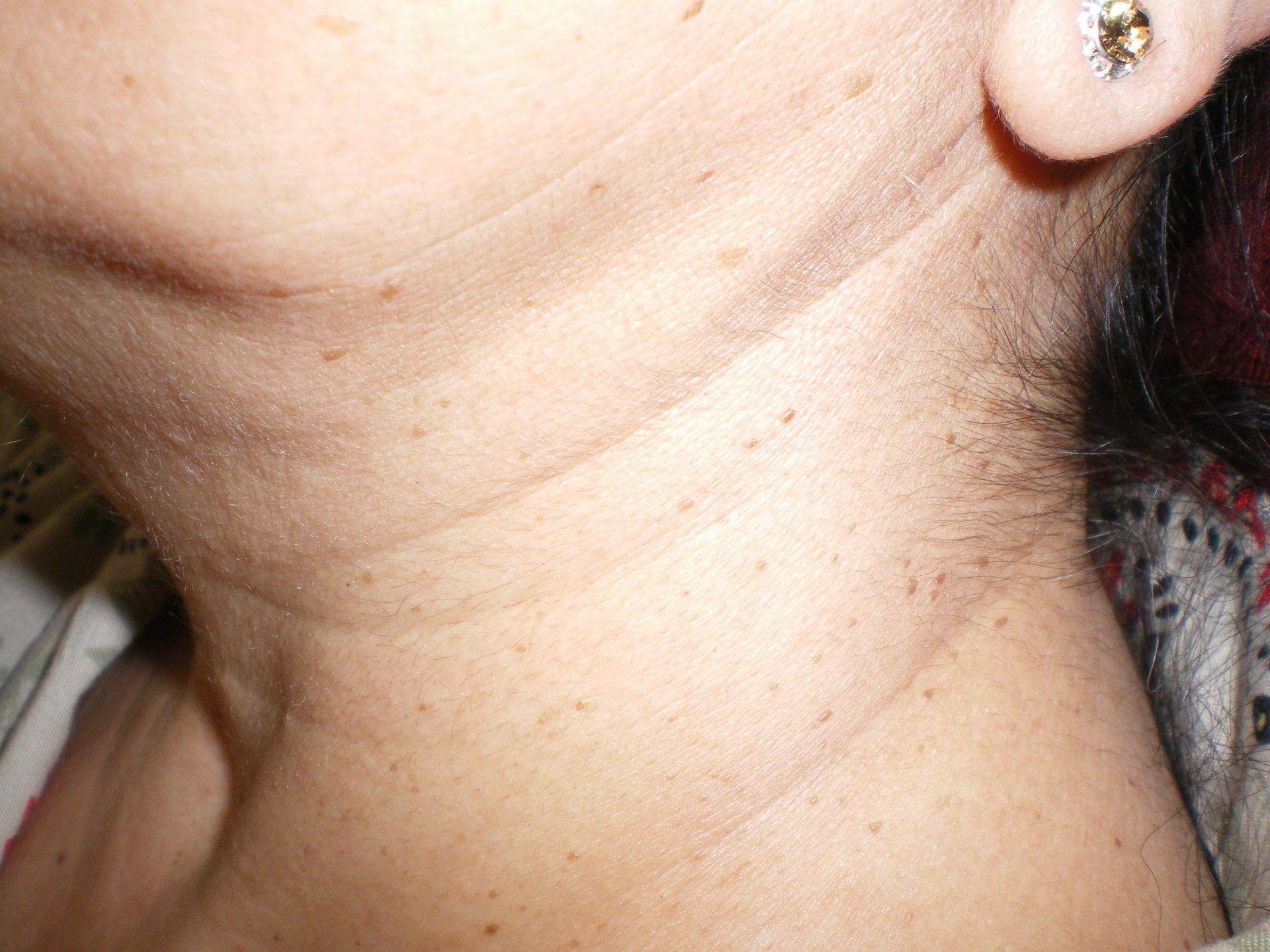 Skin tags needing removal