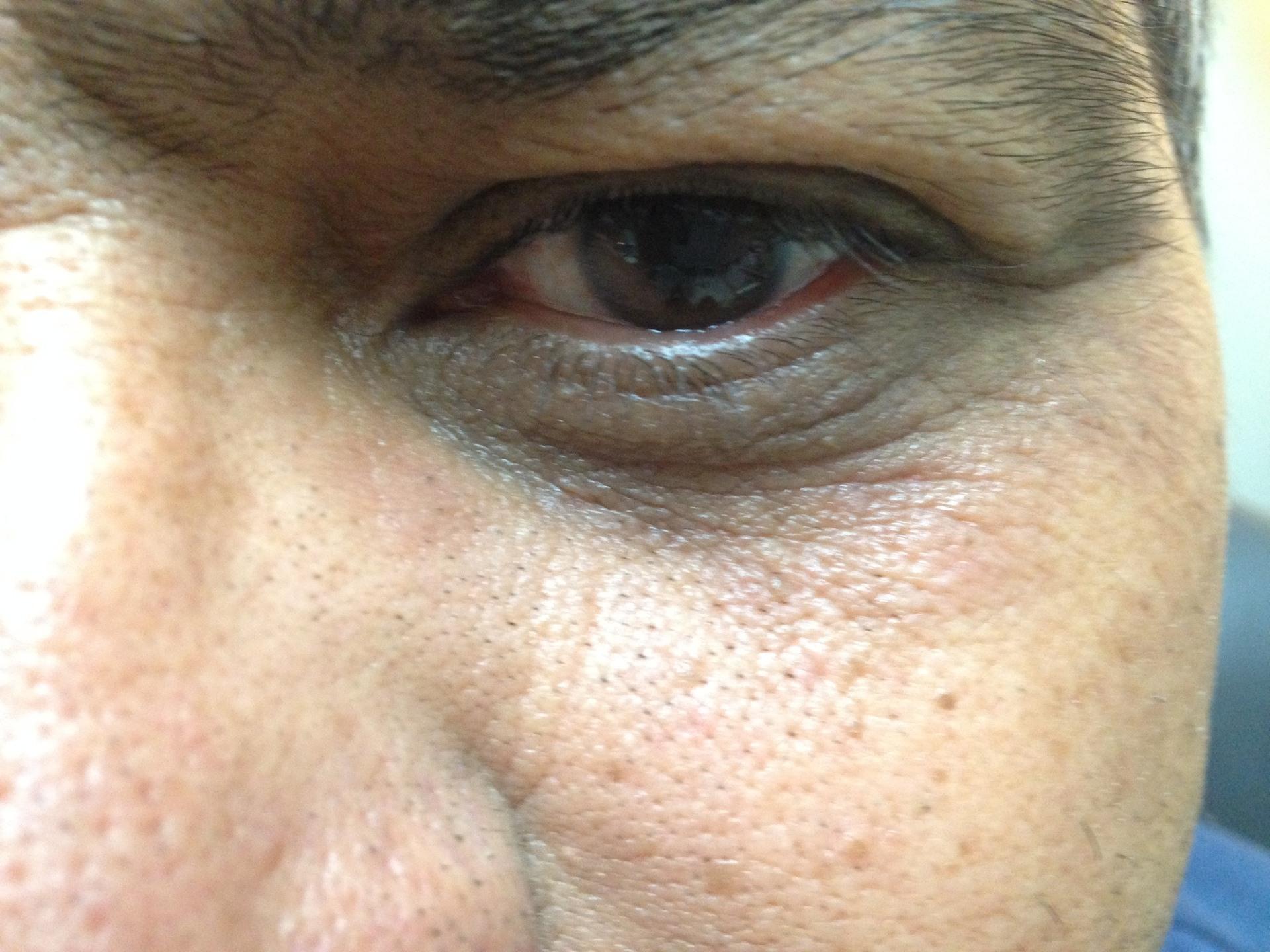 Eyelid needing surgery