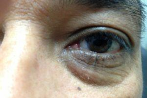 Pterygium After