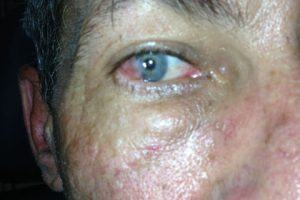 Irritated Eye needing vision services