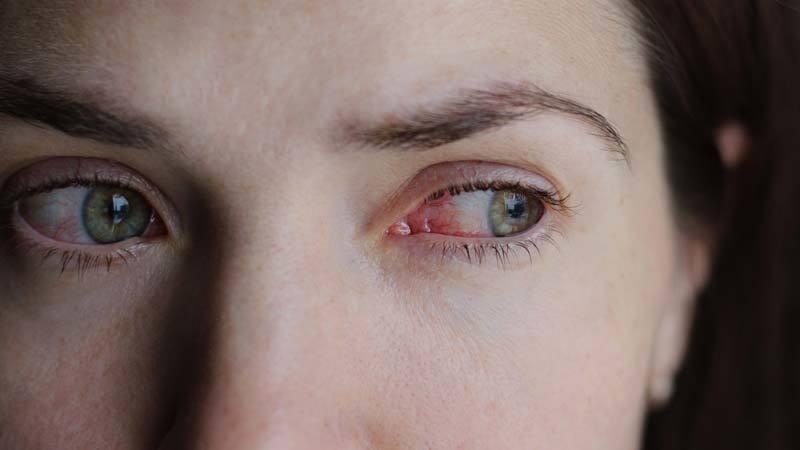 Common Eye Infections