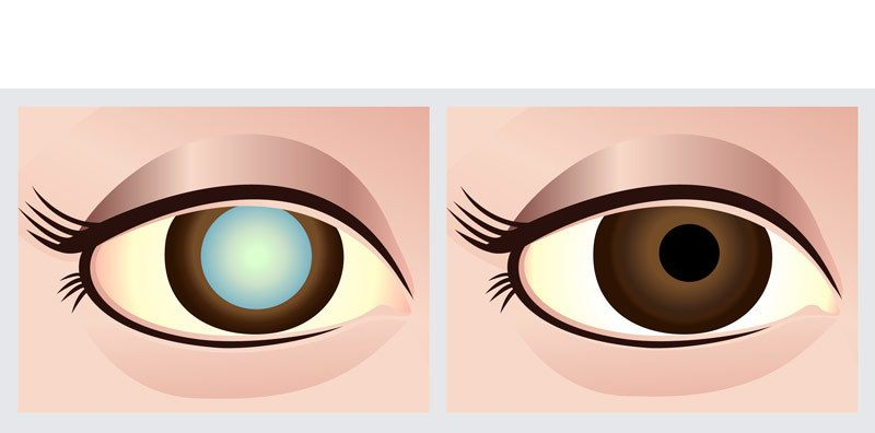 Risks of Cataract Development