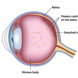 Parts of an eye