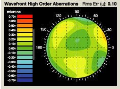 3D WaveFront map of eye for custom LASIK