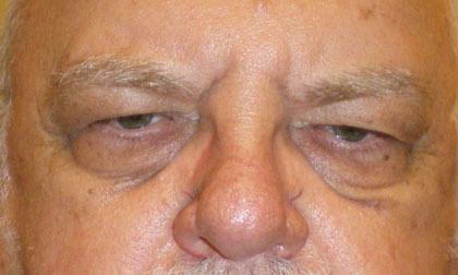 Eyelid surgery patient before