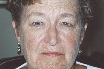 Lady before eyelid surgery