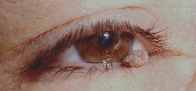 Growth on lower eyelid