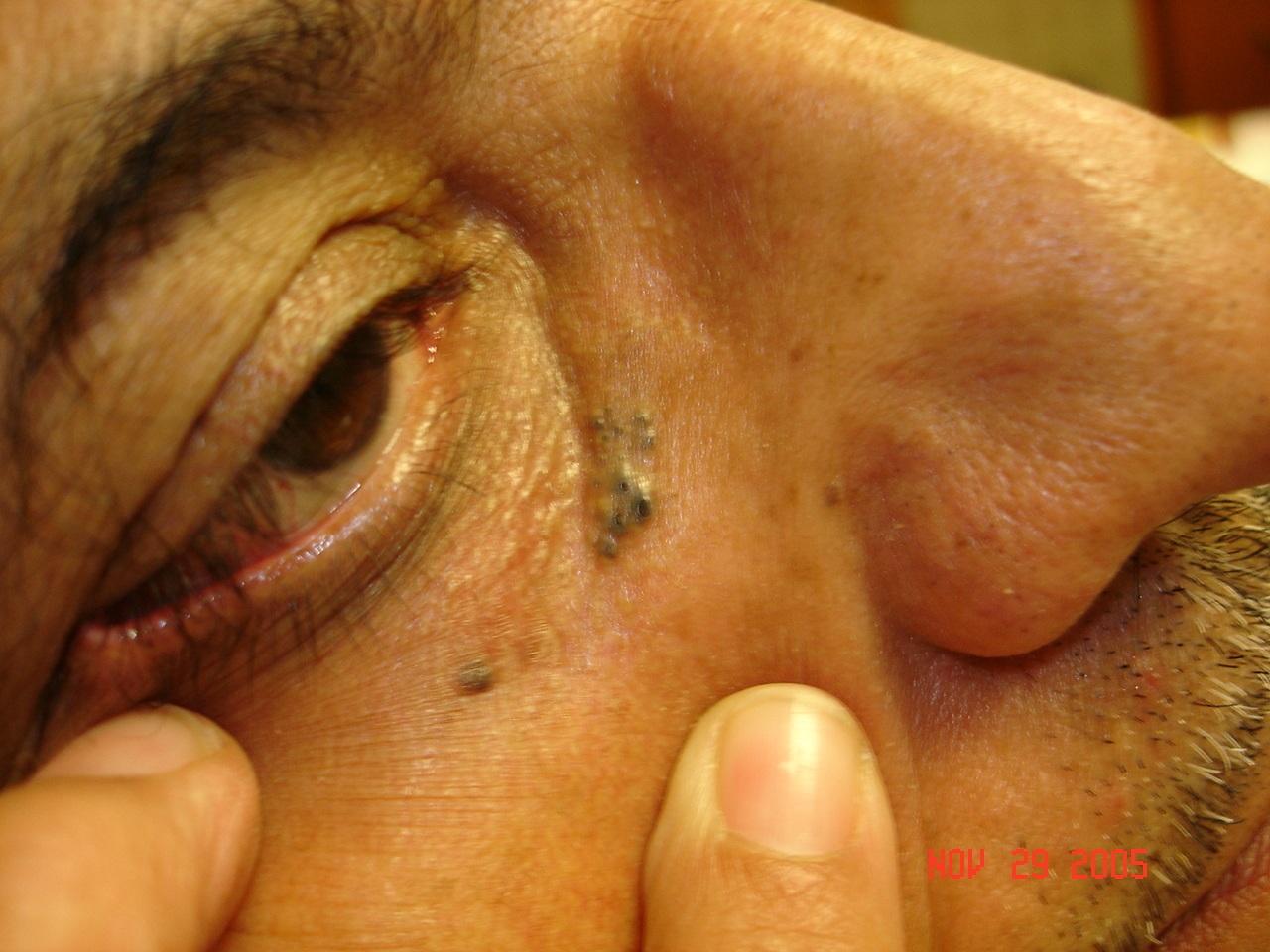 Skin imperfections under eye