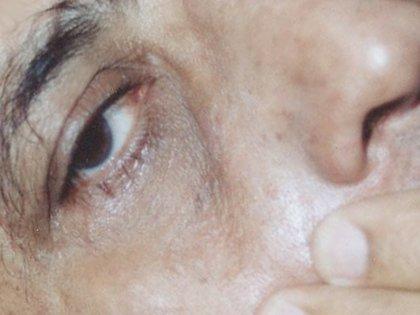 Close up of eye and eyelid