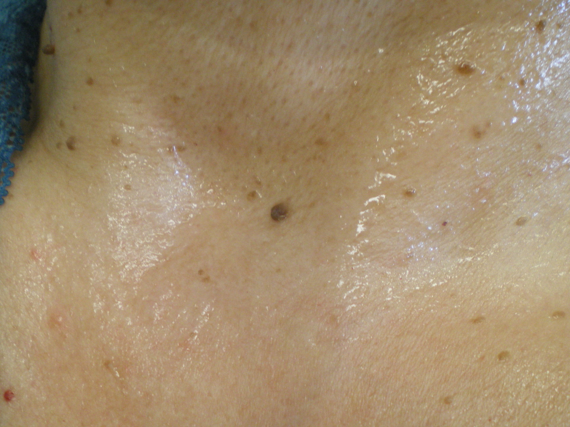 Dark imperfections on neck