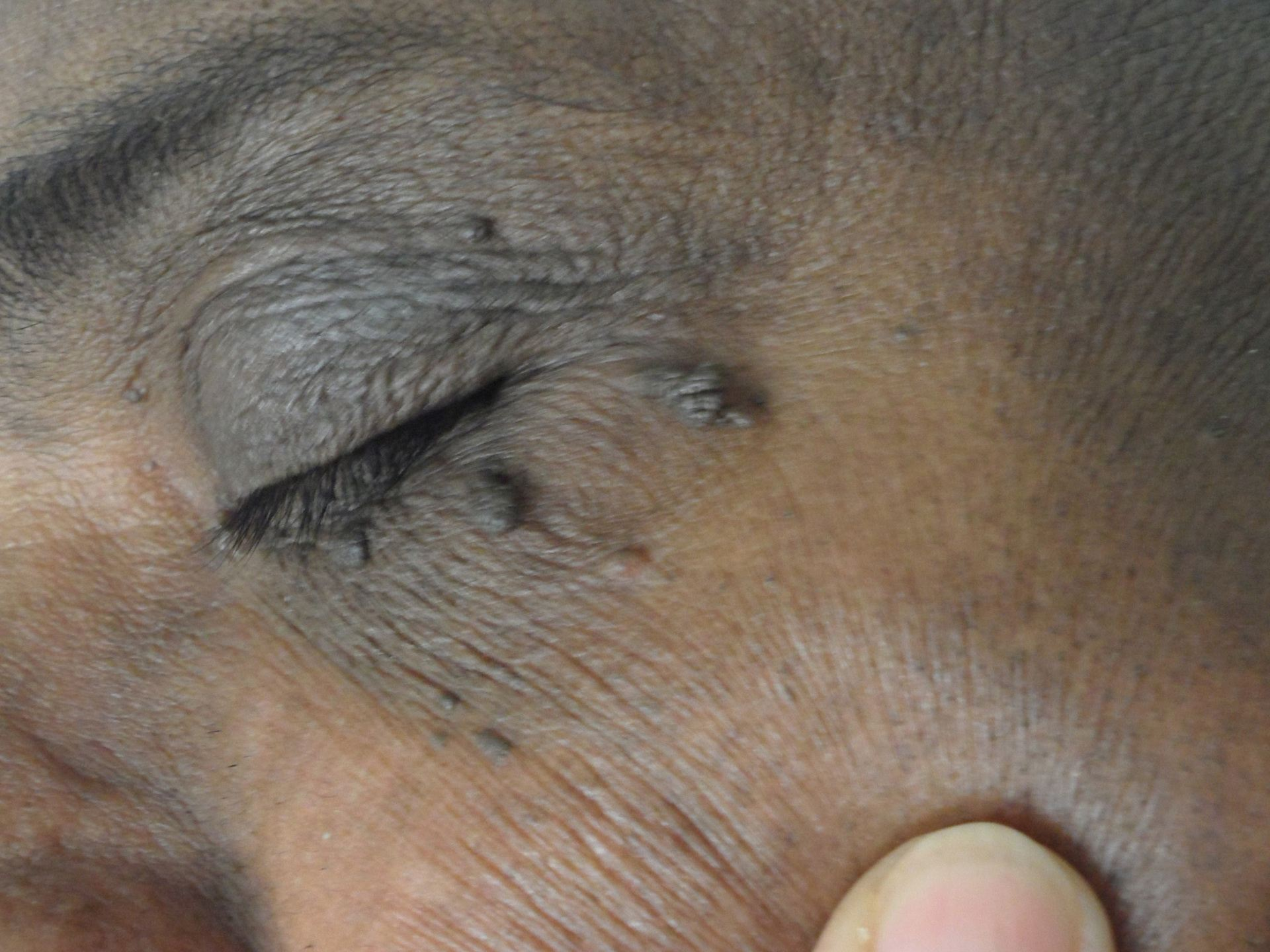 Eyelid with imperfections