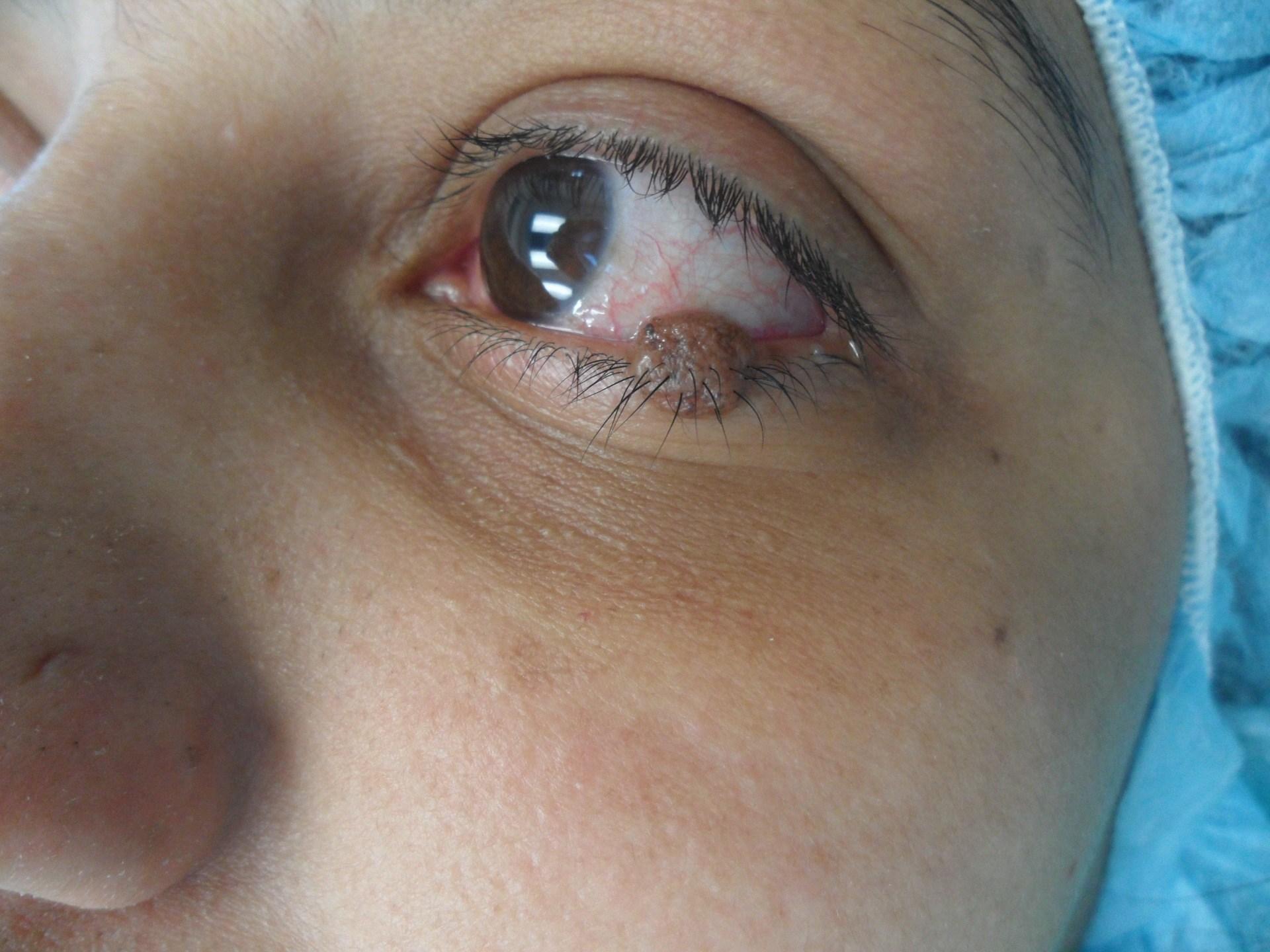 Eyelid needing treatment