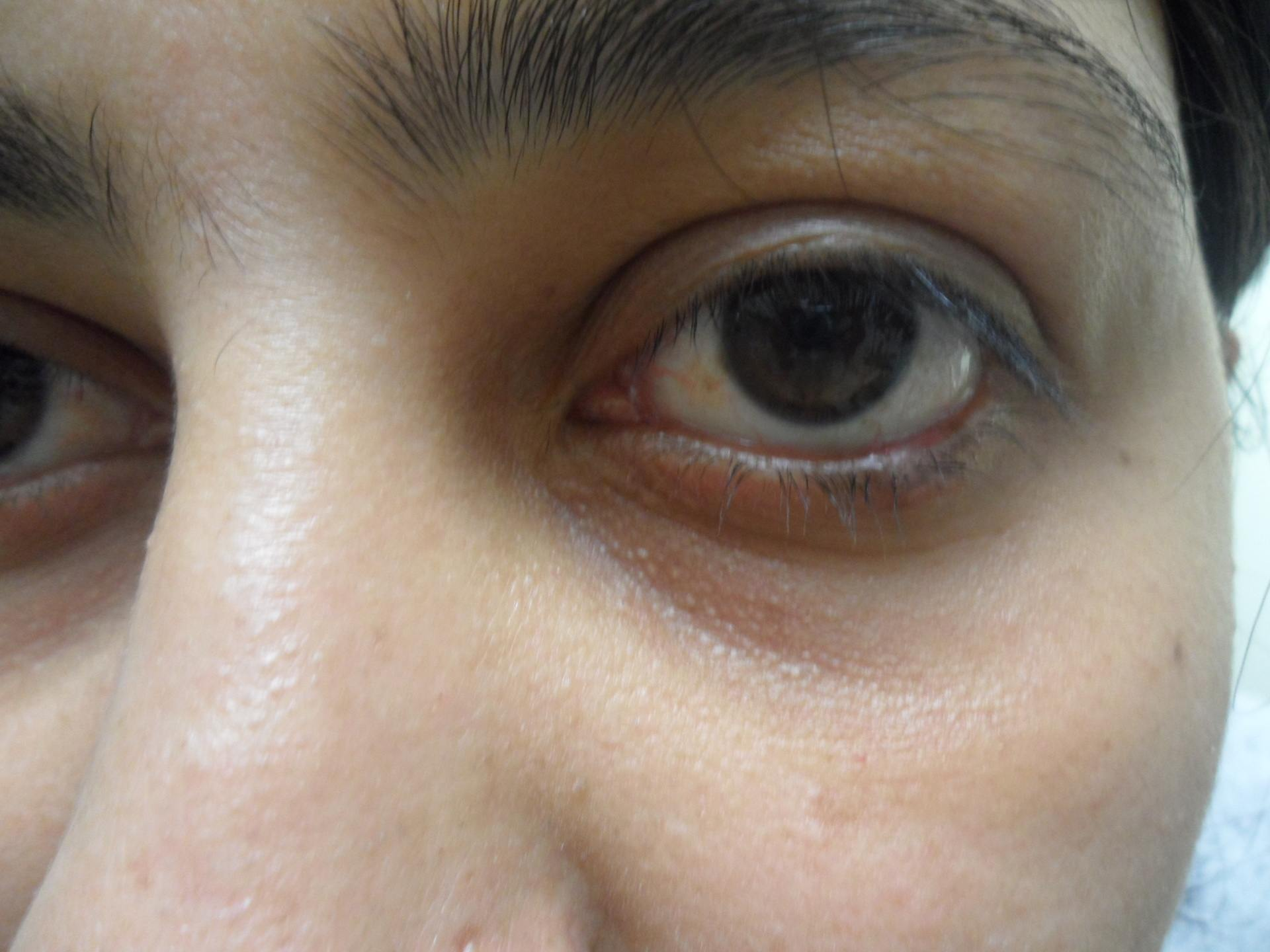Close up of unhealthy eye