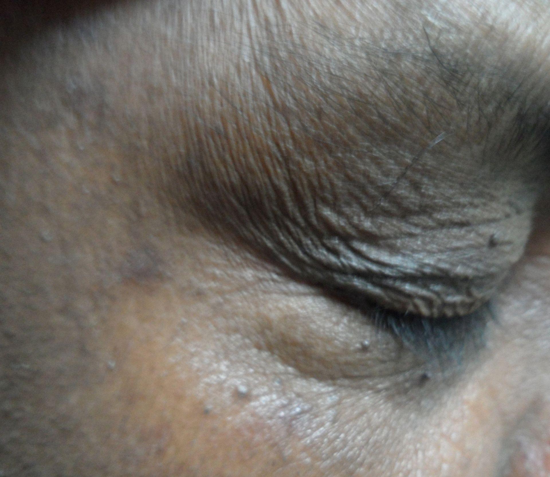 Eyelid Shut
