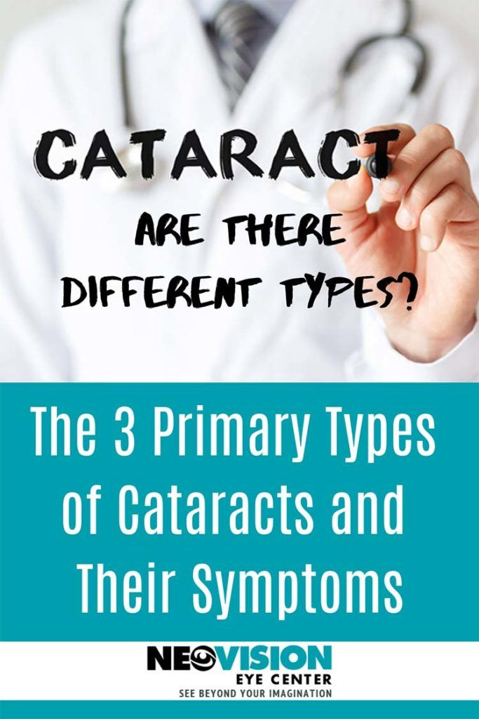 are there different types of cataracts?